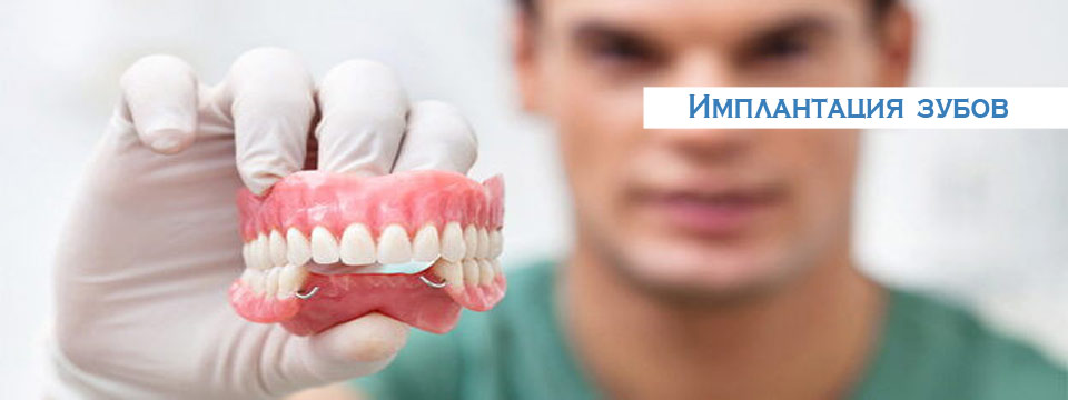 Качественная имплантация зубов в Москве
